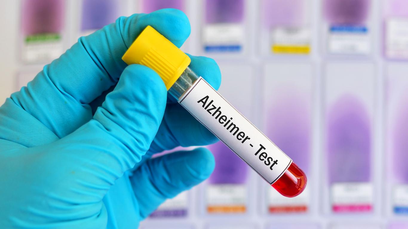 Alzheimer: Neuer Bluttest zeigt Veränderungen schon viele Jahre vorher auf
