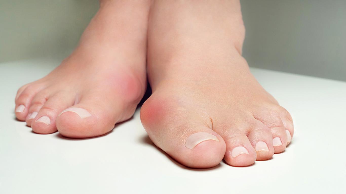 Fußfehlstellung: Hallux valgus – was hilft?
