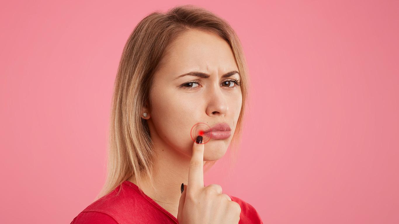Lippenherpes: Was hilft im Akutfall und wie lässt sich vorbeugen?