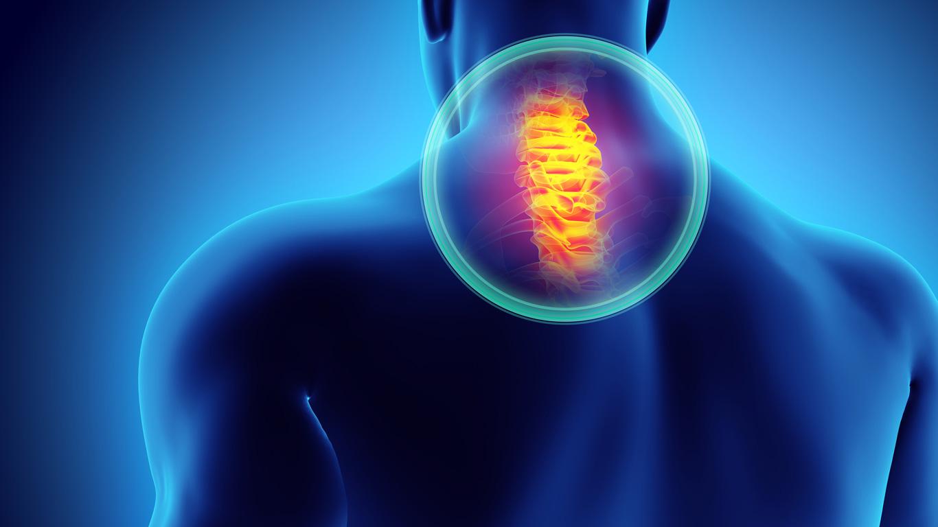 Beschwerden der Halswirbelsäule