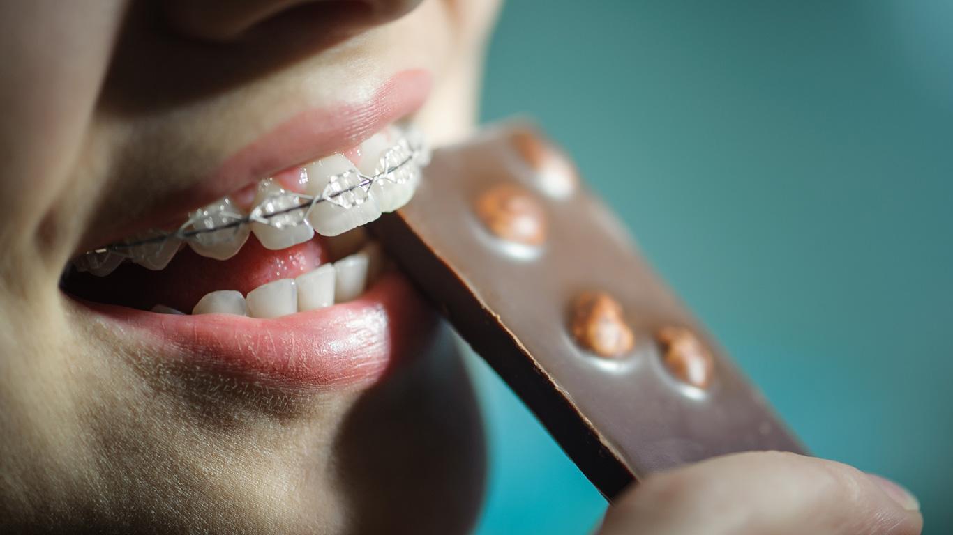 Übergewicht: Zahnspange hilft beim Abnehmen