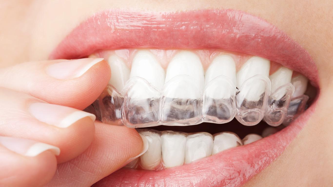 Wie man Zähneknirschen erkennt und wirkungsvoll behandelt